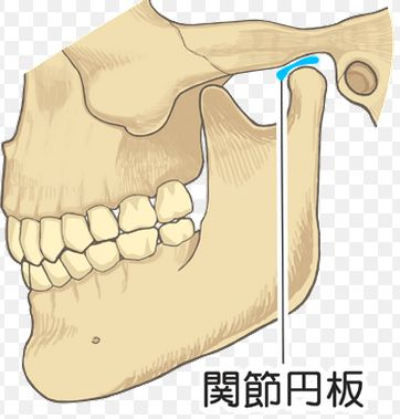 あごの痛み顎関節症口が開かない整体治療