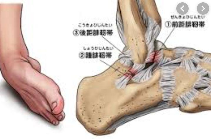 足首がゆがみ捻挫が治らないなら久が原整体
